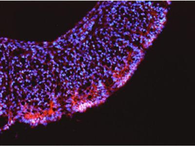 LRRN1 Polyclonal Antibody