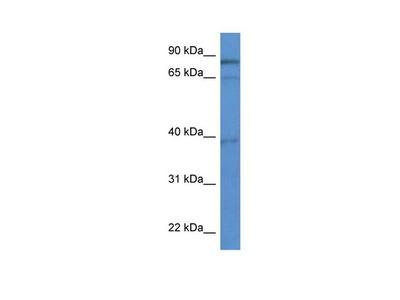 ZCCHC7 Polyclonal Antibody