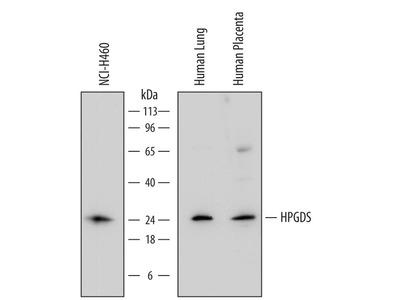 HPGDS Monoclonal Antibody (735301)