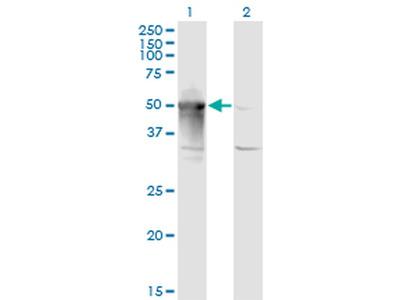 ARMC6 Monoclonal Antibody (2H8)