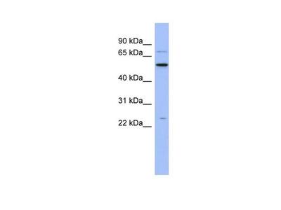 ZCRB1 Polyclonal Antibody
