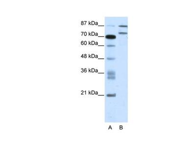 ZNF709 Polyclonal Antibody