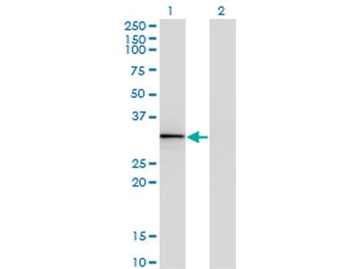 HOXA1/HOXB1/HOXD1 Monoclonal Antibody (2F12)