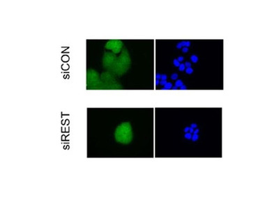 USP15 Polyclonal Antibody