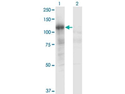 PLCL2 Monoclonal Antibody (1C7)