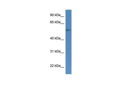 CYP51A1 Polyclonal Antibody