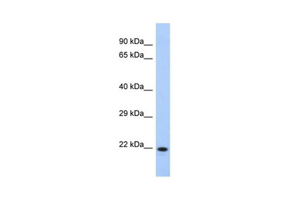 CCDC27 Polyclonal Antibody