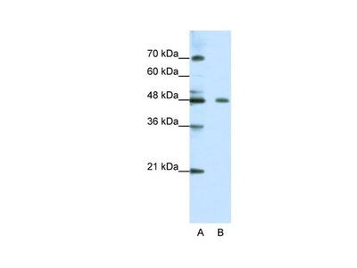 ZNF645 Polyclonal Antibody