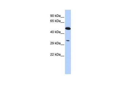PIK3IP1 Polyclonal Antibody