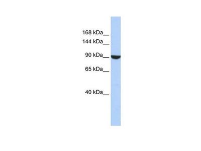 PWP2 Polyclonal Antibody