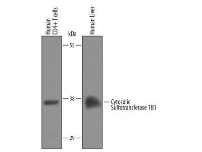 SULT1B1 Polyclonal Antibody
