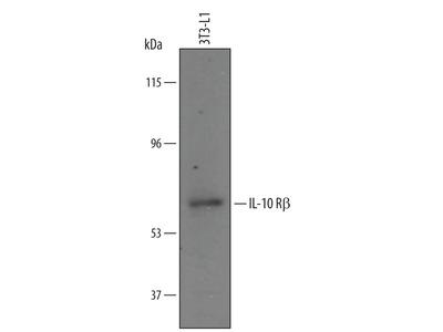 IL10RB Polyclonal Antibody