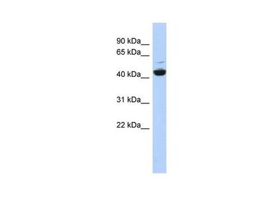 V-ATPase C1 Polyclonal Antibody