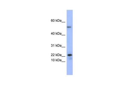 PLA2G5 Polyclonal Antibody