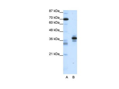 PITX1 Polyclonal Antibody