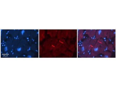 GABRR2 Polyclonal Antibody