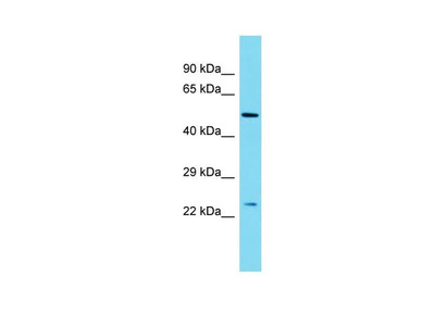 MBD3L2 Polyclonal Antibody