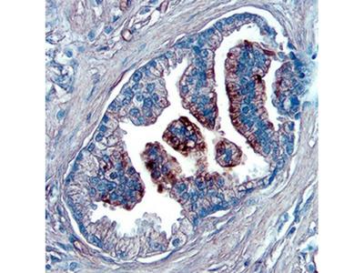 NOV Polyclonal Antibody