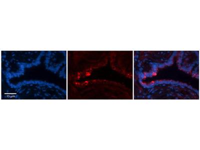 NETO2 Polyclonal Antibody