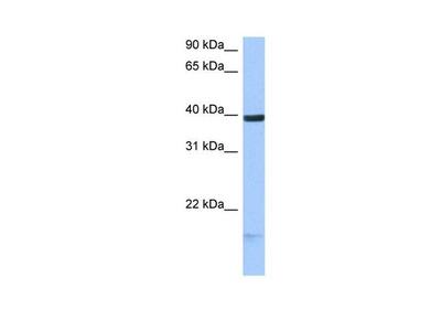 HS3ST5 Polyclonal Antibody