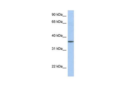 LFNG Polyclonal Antibody