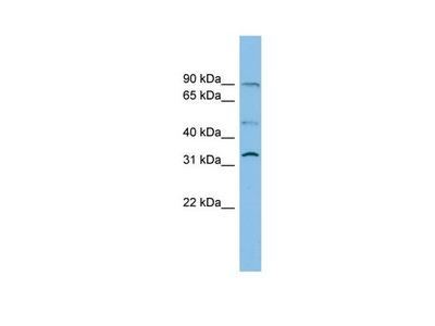 SLC27A3 Polyclonal Antibody