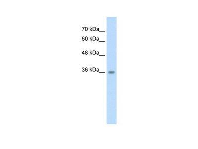 TRABD Polyclonal Antibody