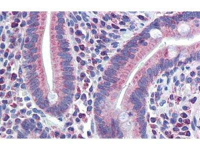 PXR Polyclonal Antibody