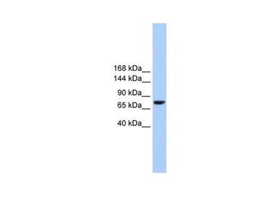 TMC2 Polyclonal Antibody