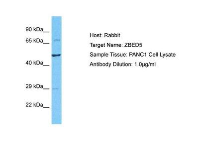 ZBED5 Polyclonal Antibody