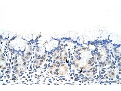 DAZ4 Polyclonal Antibody