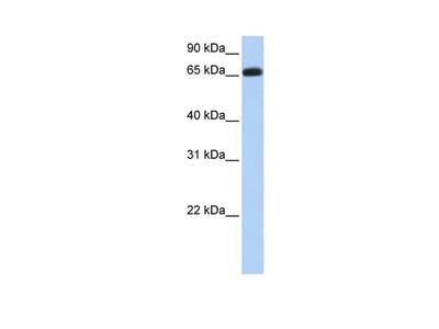 ENTPD7 Polyclonal Antibody