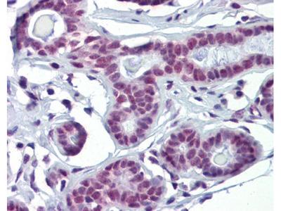 SOX4 Polyclonal Antibody