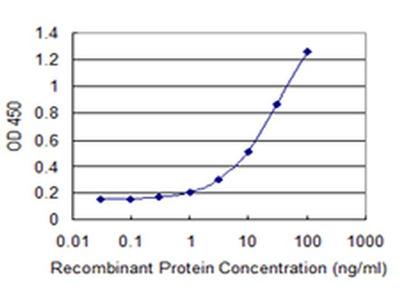 EXOSC7 Monoclonal Antibody (2F10)