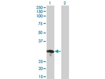 RABL2B Monoclonal Antibody (1B10)