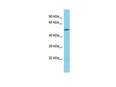 BPIFB6 Polyclonal Antibody