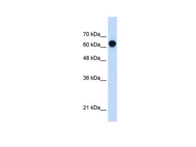 POMGNT2 Polyclonal Antibody