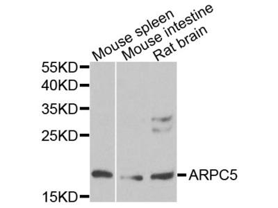 ARPC5 / p16-Arc Antibody