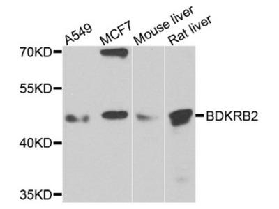 BDKRB2/Bradykinin B2 Receptor Antibody