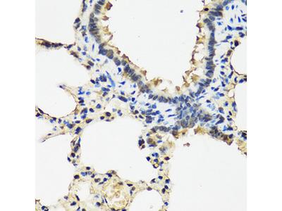 ARSF / Arylsulfatase F Antibody