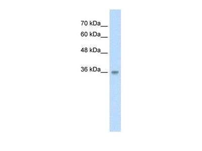 TRABD antibody