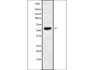TIGD2 antibody