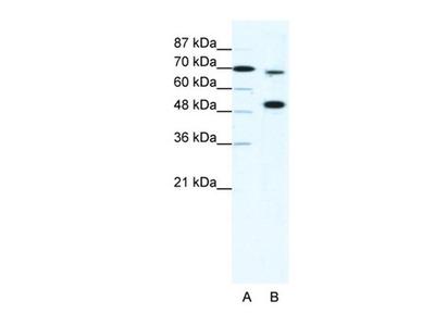 KMT2B antibody