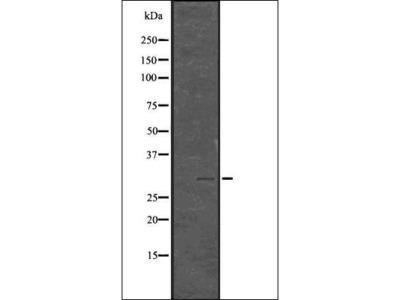 Histone H1.3+H1.4 (Phospho-T17) antibody