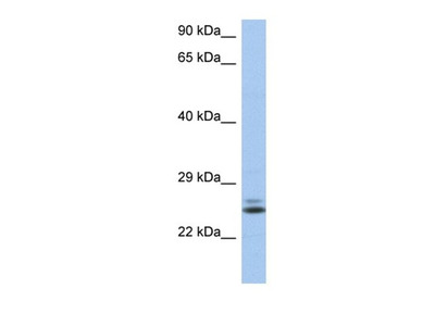 RAB15 antibody