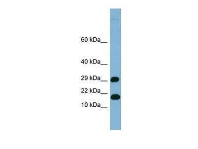 TRAPPC2L antibody