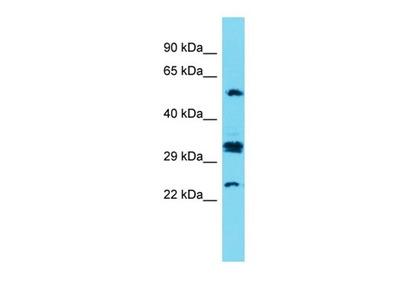 CT47A7 antibody