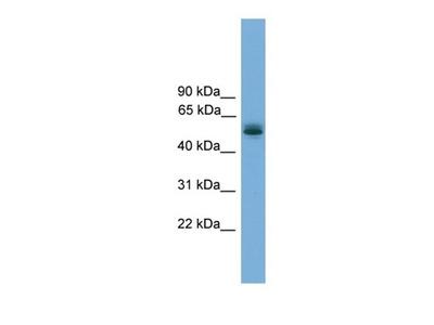 TRMT13 antibody