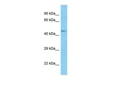 TRM13 antibody