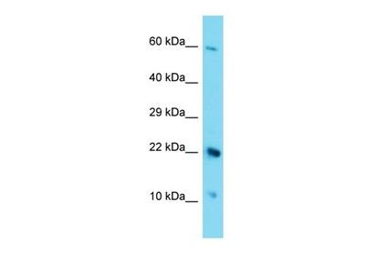 C17orf105 antibody